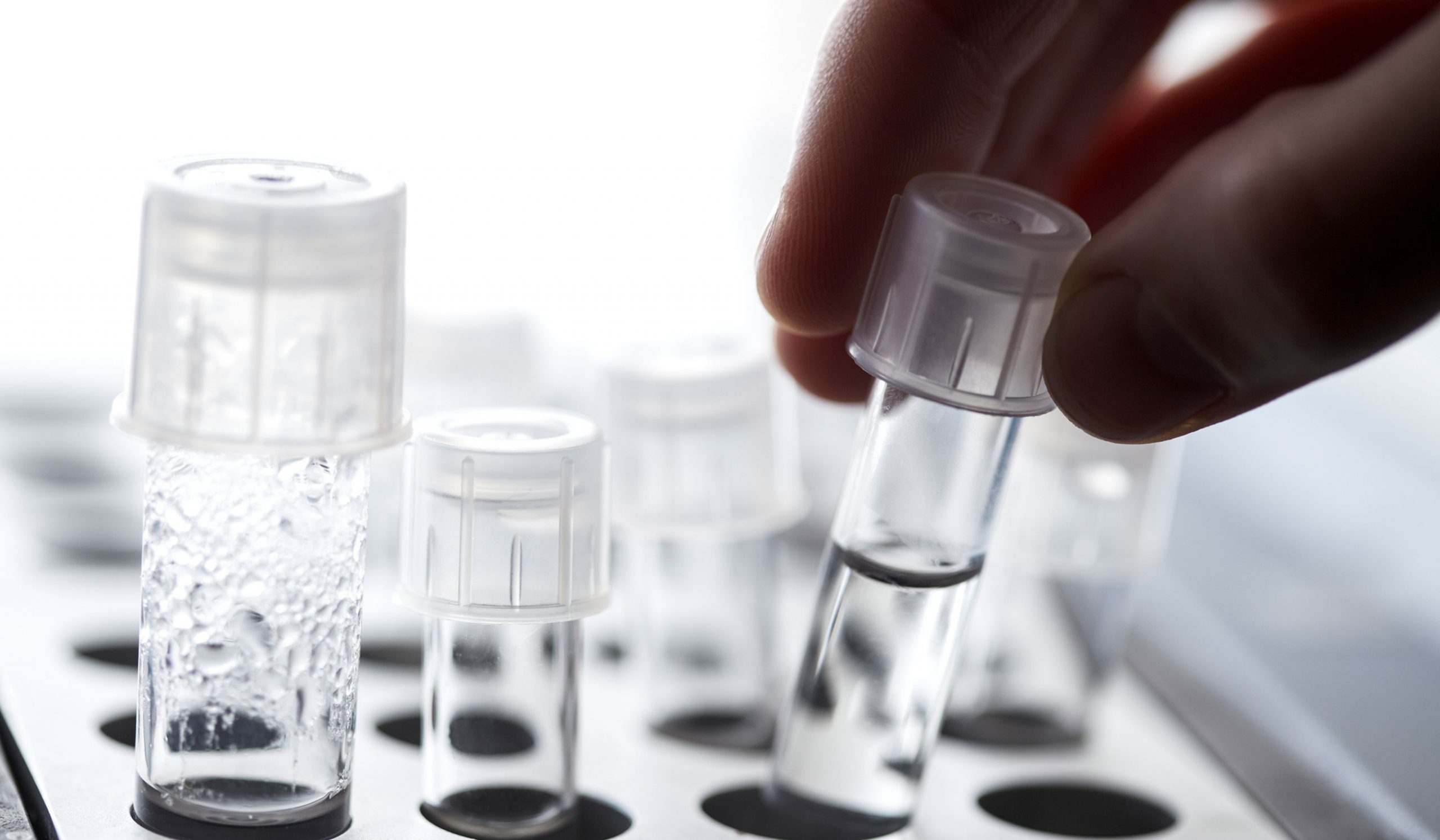 Things to Consider Before Getting Tested For Infertility
